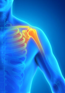 Dr. Sonal Kapoor Physiotherapy Clinic - Rotator Cuff Tear