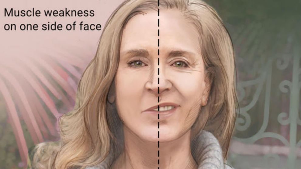 Dr Sonal Kapoor Physiotherapy Clininc in Gurugram - Muscle weakness on one side of face