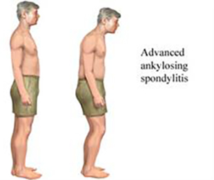 Dr. Sonal Kapoor Physiotherapy Clinic - Ankylosing Spondylitis