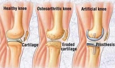 Dr. Sonal Kapoor Physiotherapy Clinic - Arthritis Conditions