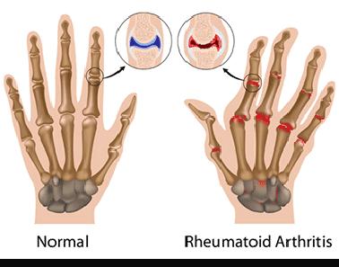 Dr. Sonal Kapoor Physiotherapy Clinic - Rheumatoid Arthritis Conditions