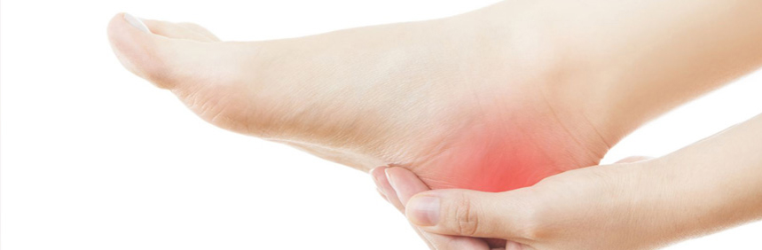 Dr. Sonal Kapoor Physiotherapy Clinic - Calcaneal Spur